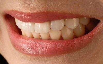 Sensibilidad dental: qué es y tratamiento
